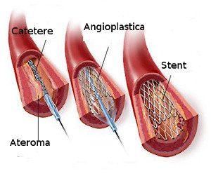 ptca-con-stent